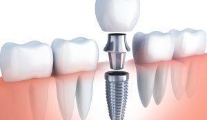 Czy warto zdecydować się na implant zęba ?